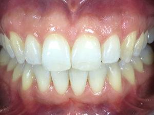 Zahnkorrektur mit Invisalign und Bleaching
