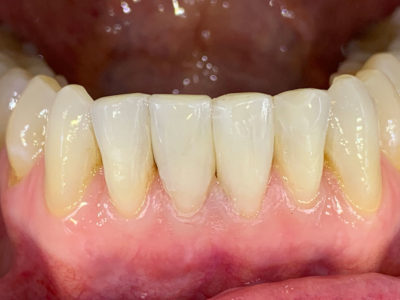 Zahn nach der minimalinvasiven Behandlung